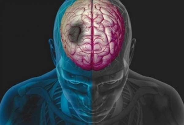 Мозговая активность в полушариях человека